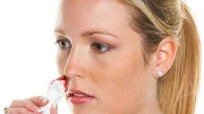 ce trebuie sa faci cand iti curge sange din nas