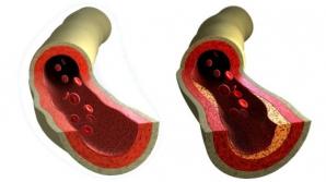 În ce alimente se găsește vitamina care protejează vasele de sânge și întărește oasele