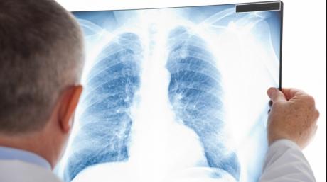 Primele simptome ale tuberculozei. Mergi, de urgenta, la medic!