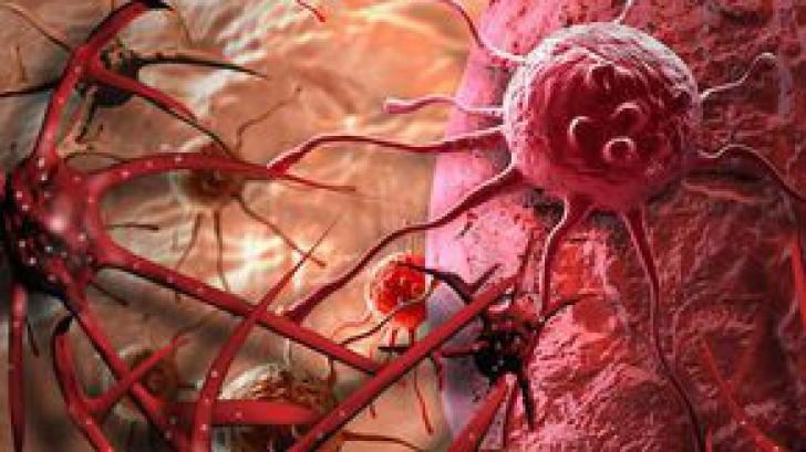 Descoperire: Motivul evident care îţi spune dacă vei face cancer