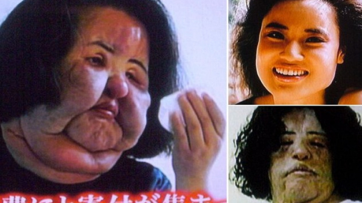 Povestea terifiantă a femeii care şi-a injectat ulei pentru gătit în faţă. A vrut să fie perfectă!