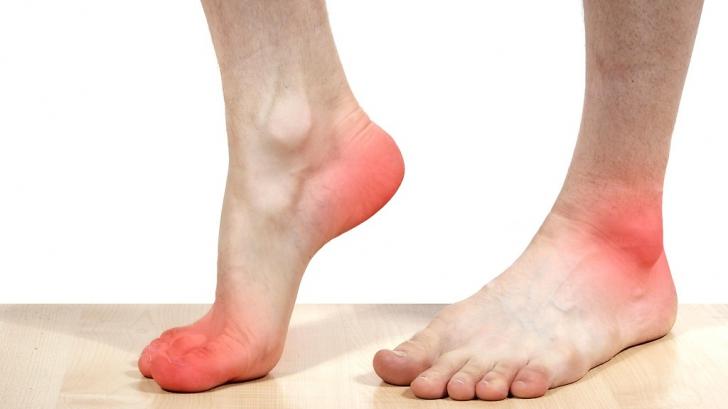 Piciorul diabetic sau neuropatia diabetica