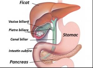 cancerul vezicii biliare