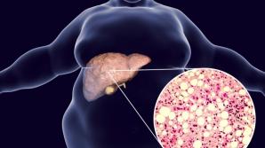 Steatoza hepatica