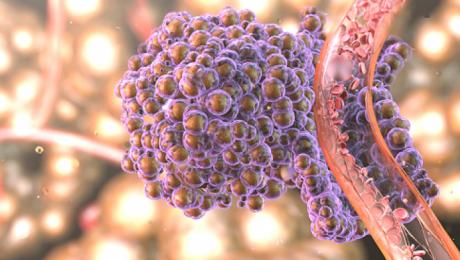 Alimentul care răspândește cancerul în tot corpul. Renunță la el cât mai rapid
