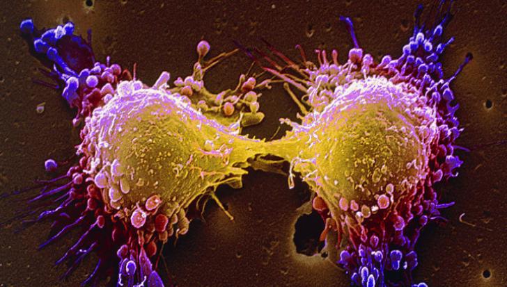 """De ce recidivează cancerul după ce """"te vindeci""""?"""