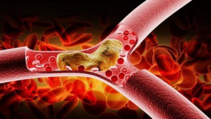Colesterol valori normale