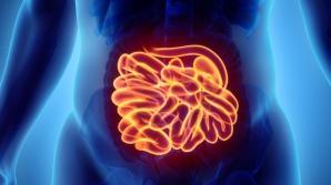 Cancerul de intestin subtire: simptome si cauze