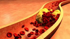 Sucul miraculos care elimină colesterolul rău din sânge