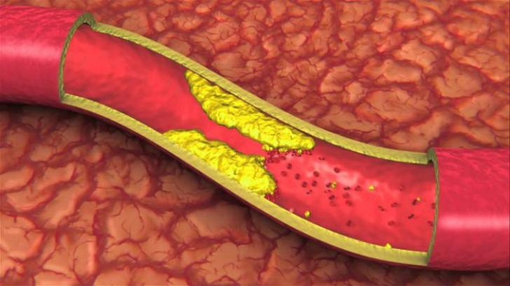 Alimentele care îți distrug organismul în doar 9 zile.Îngustează arterele și încetinesc metabolismul