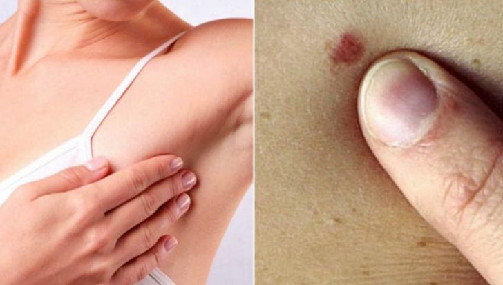 Simptomul care arată clar că ai cancer la sân. Toate femeile îl ignoră!