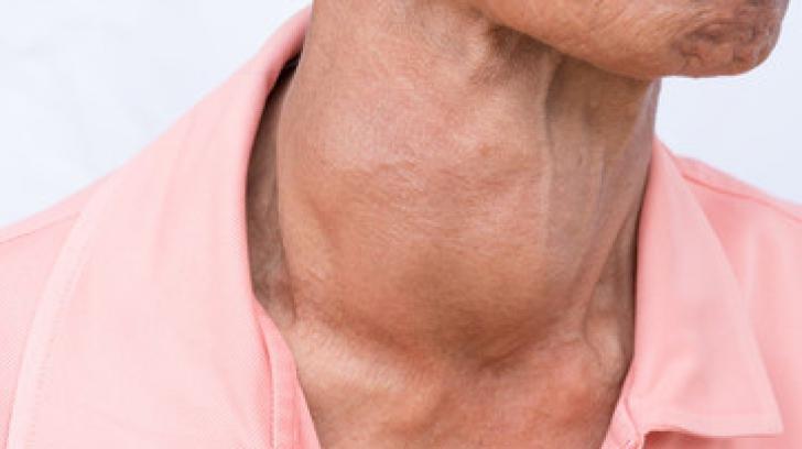 Şi bărbaţii au probleme cu tiroida! Care sunt semnele care trebuie să te îngrijoreze