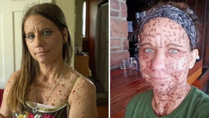 Femeia cu peste 6.000 de tumori pe trup a fost operată. Cum arată ACUM a şocat şi mai rău