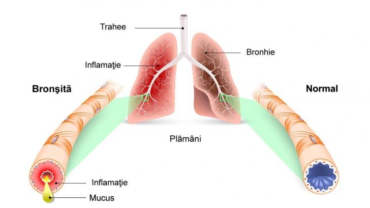 bronsita tratament