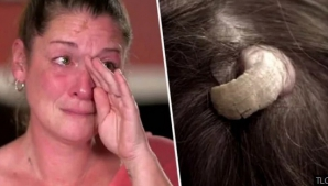 Femeia a mers disperată la medic. Îi crescuse un corn în cap. Oribil ce a urmat! Doctorul a amuțit