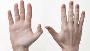Simptomele cancerului apar prima dată pe mână. Cum arată