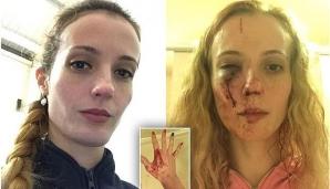 Anca, o tânără din România, atacată violent în Marea Britanie