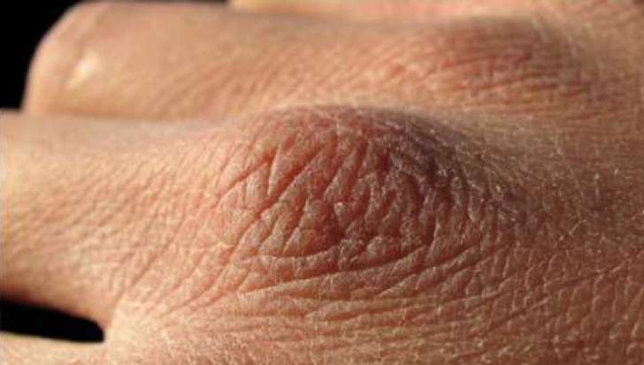 Cancerul apare mai întâi pe mâini. Primele semne care ar trebui să te îngrijoreze