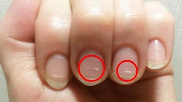 Semnele de pe unghii care îți arată că trebuie să mergi de urgență la doctor