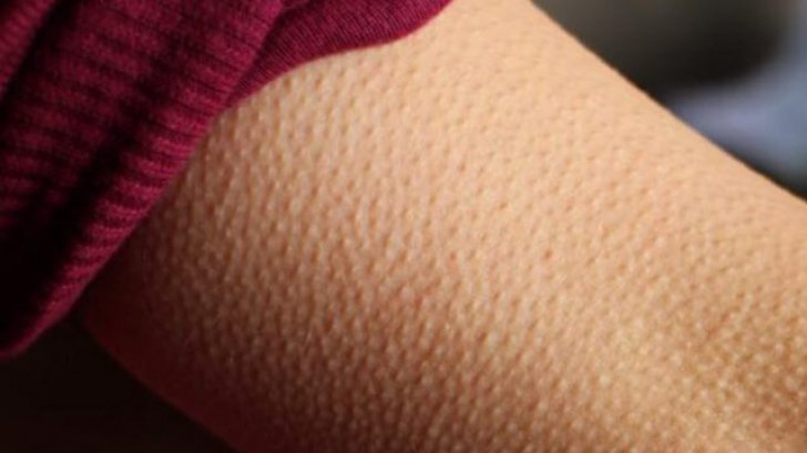 """Ți se face """"pielea de găină"""" atunci când asculți muzică? Este fabulos!"""