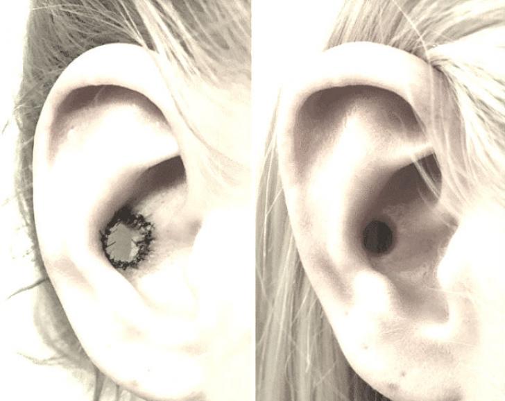 """Transformări extreme. Urechile decupate în interior: """"moda"""" care a șocat. Coșmar pentru medici"""