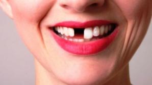 Ce înseamnă când visezi că îţi cad dinţii