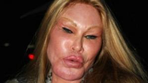 Femeia care a visat să aibă un chip de felină. Operațiile estetice au măcelarit-o. Ireal!