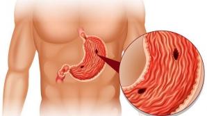 Simptome ale ulcerului care trebuie să te trimită de urgență la medic