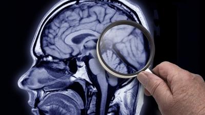 Cum o să poți uita ce vrei: specialiștii știu cum să șteargă amintiri din creier!