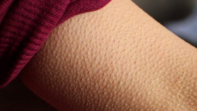 """Ce înseamnă dacă ți se face """"pielea de găină"""" atunci când asculți muzică. Nu îți va veni să crezi"""