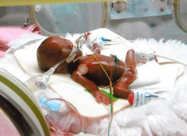 Ryusuk, copilul de 250 de grame la naștere