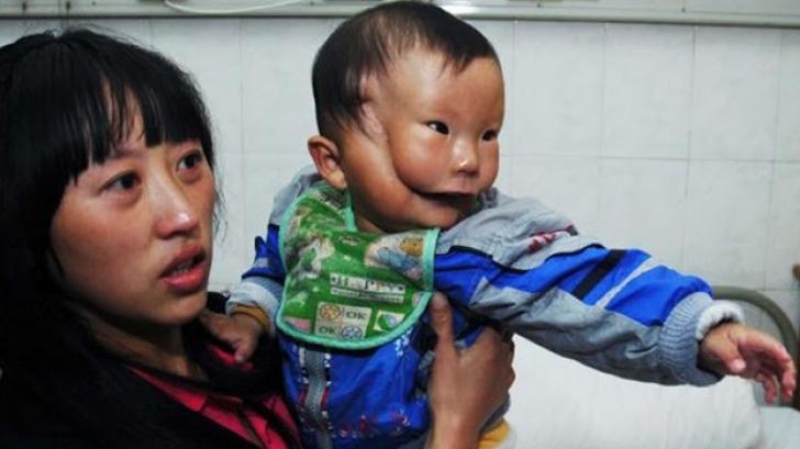Băiatul cu mască, poveste terifiantă. Afecțiunea care i-a îngrozit până și pe medici!