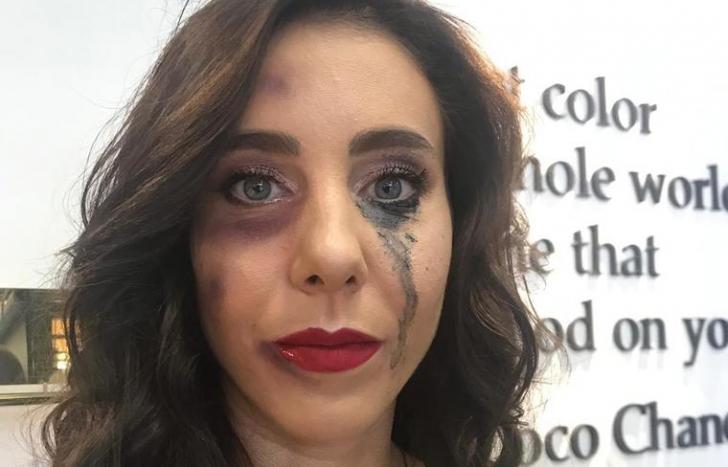 Miki Buzărnescu, imagine disperată: vânătă şi cu ochii în lacrimi