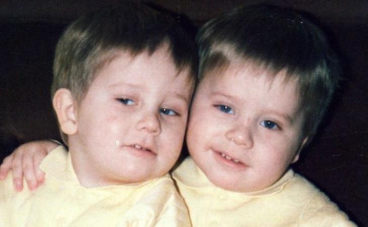 Povestea terifiantă a gemenilor identici care sunt complet diferiți. Au șocat lumea medicală
