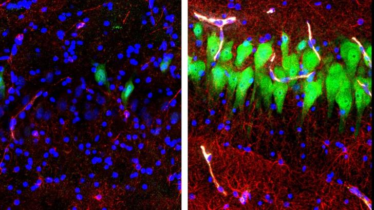 Cum aratau celulele creierului înainte și după resuscitare