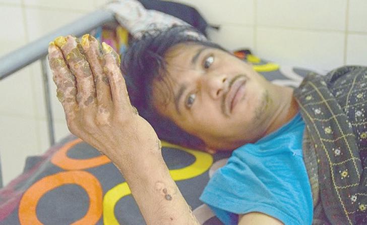 Coșmar pentru omul copac. După operație, i-au dat vestea șoc! Medicii, terifiați de ce au găsit
