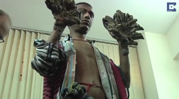Ce a pățit omul copac, la doi ani după ce s-a operat. Medicii, anunț șoc