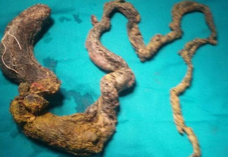 La 13 ani, a murit după ce și-a mâncat părul din cap. La autopsie, au găsit ceva și mai șocant!