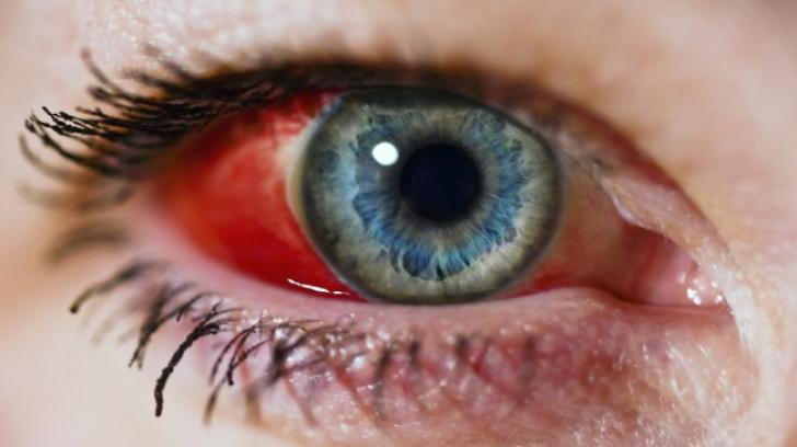 Ți s-a spart un vas de sânge în ochi? Semnele care trebuie să te trimită urgent la medic