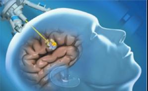 Tumorile cerebrale, operate în echipe complexe