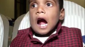 Băiețelul cu 526 de dinți