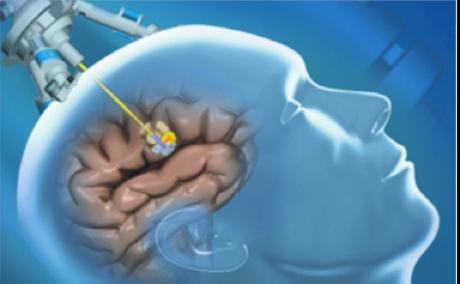 Regula de aur pentru tratarea cu succes a tumorilor cerebrale
