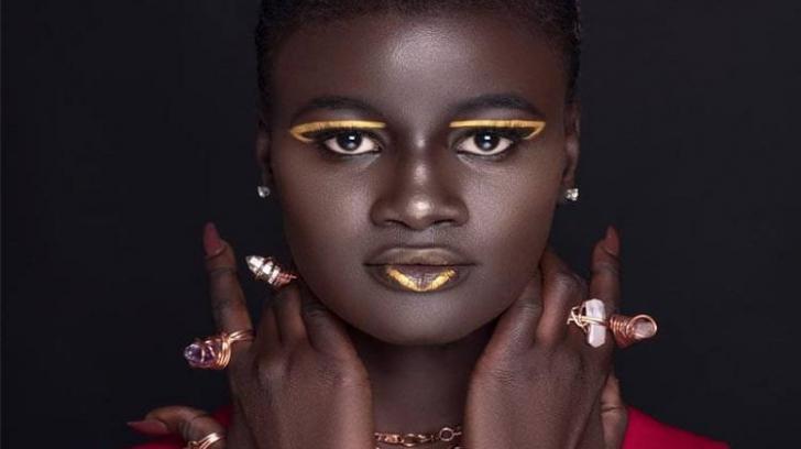 Modelul care a devenit celebru pe rețelele de socializare datorită pielii sale