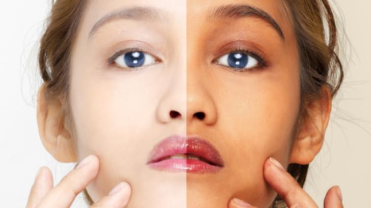 Ce efecte are soarele asupra părului și pielii, așa cum au descoperit oamenii de știință