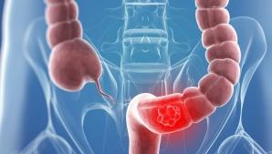 Simptomele care trădează cancerul de colon