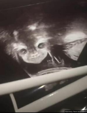 """La ecografie, a venit șocul: """"E copilul diavolului! Mi se uită direct în suflet!"""" Ce purta în pântec"""