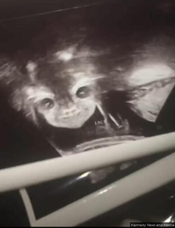 """<p>La ecografie, a venit șocul: """"E copilul diavolului! Mi se uită direct în suflet!"""" Ce purta în pântec</p>"""