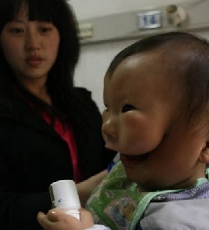 <p>Povestea terifiantă a băiatului cu mască. Afecțiunea care i-a îngrozit până și pe medici!</p>