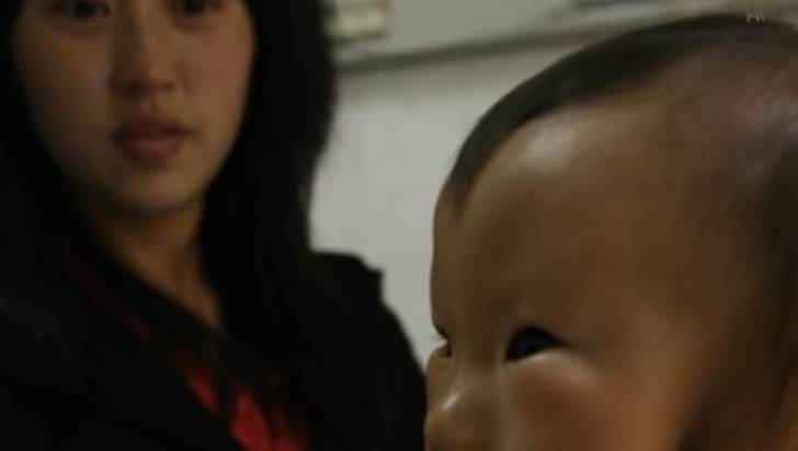 Povestea terifiantă a băiatului cu mască. Afecțiunea care i-a îngrozit până și pe medici!