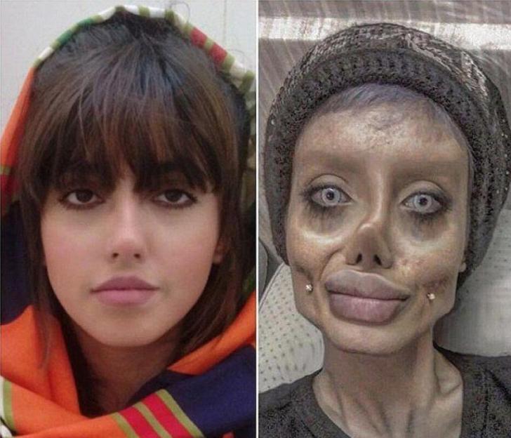 Femeia care s-a operat să semene cu Angelina Jolie a fost arestată